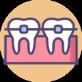 010-braces